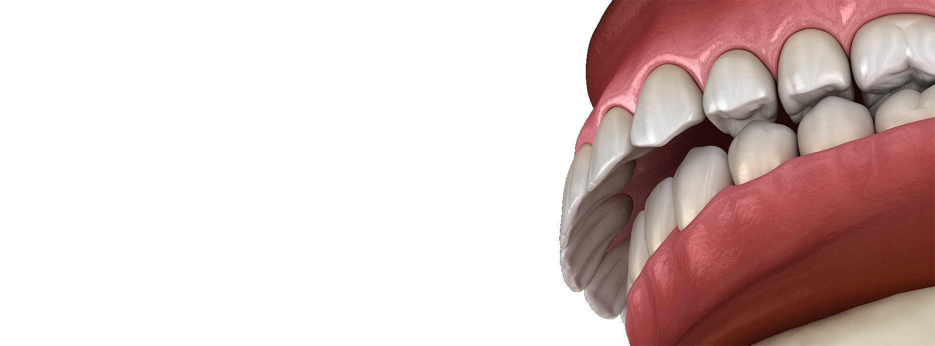 TMJ and Occlusion Course 19-20 June 2020